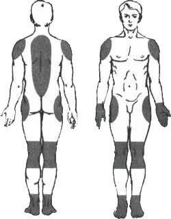Deformierende Osteochondrose
