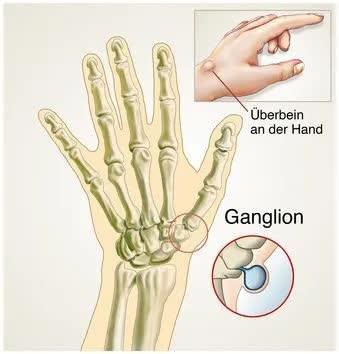 Erklärungsbild für Ganglion (Überbein) am Handgelenk