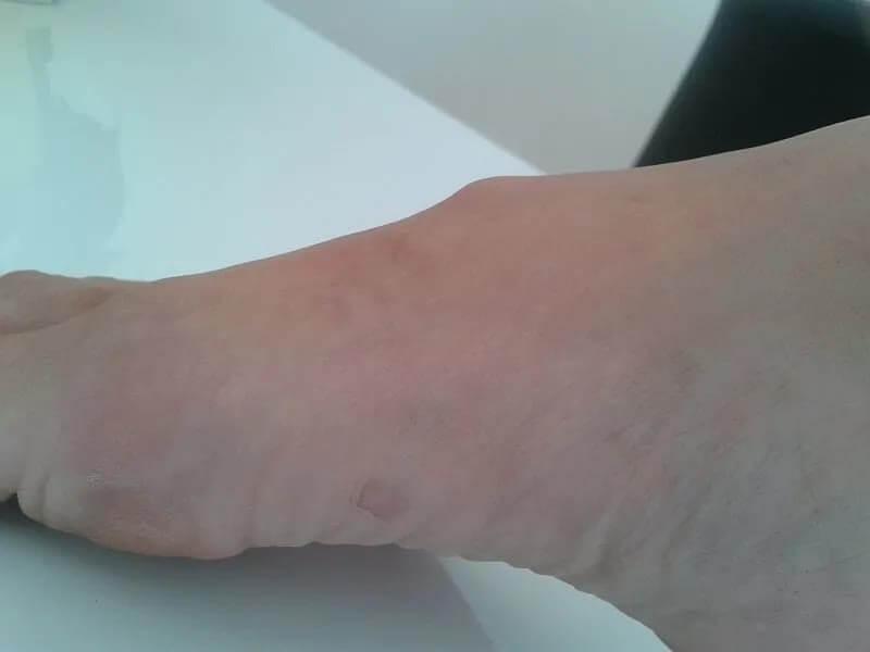 Überbein (Ganglion) am Fußrücken vor der Behandlung mit Sivash-Heilerde