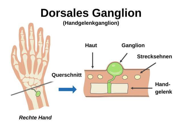 Handgelenkganglion (dorsales Ganglion)