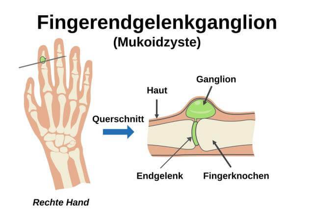 Mukoidzyste (Fingerendgelenk-Ganglion)