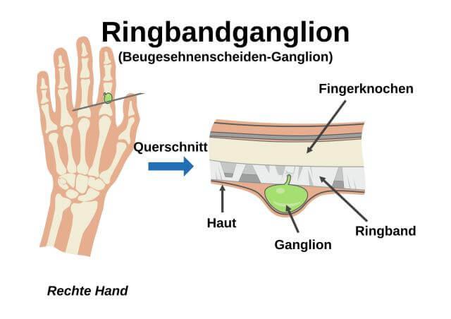 Ringbandganglion (Beugesehnenscheiden-Ganglion)