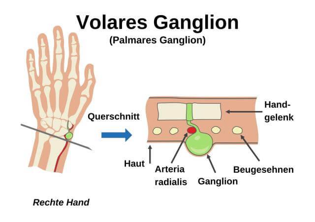 Volares (palmares) Ganglion am Handgelenk