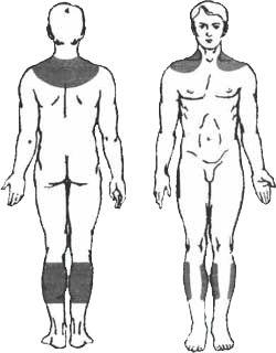 Behandlung der Angina Pectoris mit Sivash-Heilschlamm