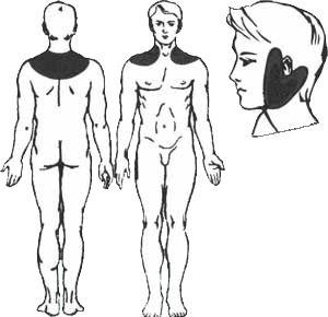Behandlung der Neuritis des Hörnervs mit Sivash-Heilschlamm