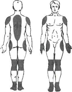 Peloidtherapie Osteochondrose