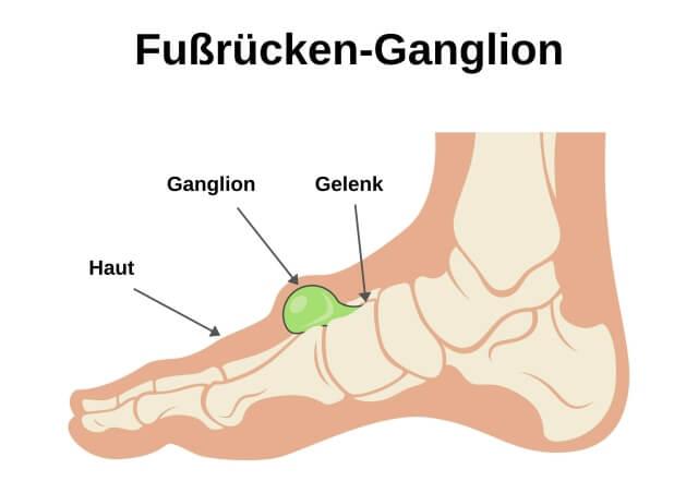 Erklärungsbild zu Ganglion (Überbein) am Fuß (Fußrücken)
